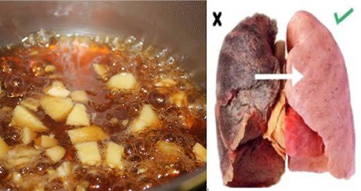 I polmoni sono una parte importante del nostro corpo, e proteggerli è fondamentale per mantenere [Leggi Tutto...]