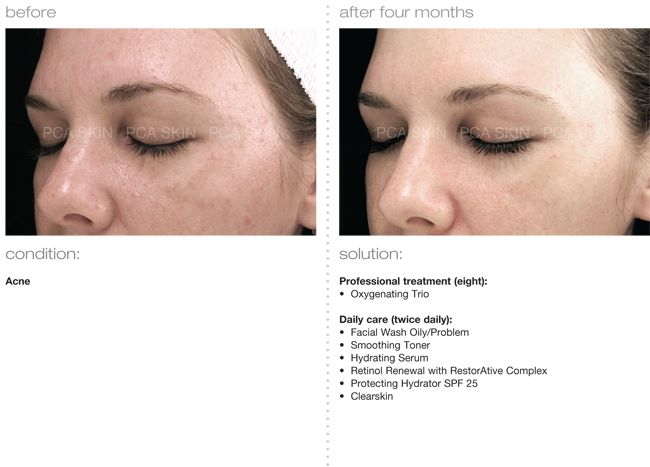Pca Skin Care Products