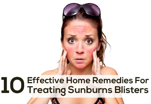 Top 10 Effective Home Remedies For Treating Sunburns Blisters