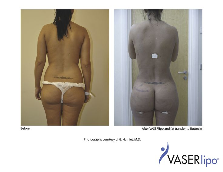 Flank VASER Lipo & Buttocks Fat Transfer