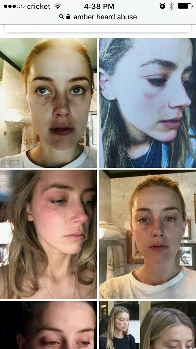 Pin On Make Up Easy To Fake Domestic Violence And Abuse Like Amberheard Did Fake Domestic Violence Using This Creating Fake Bruises