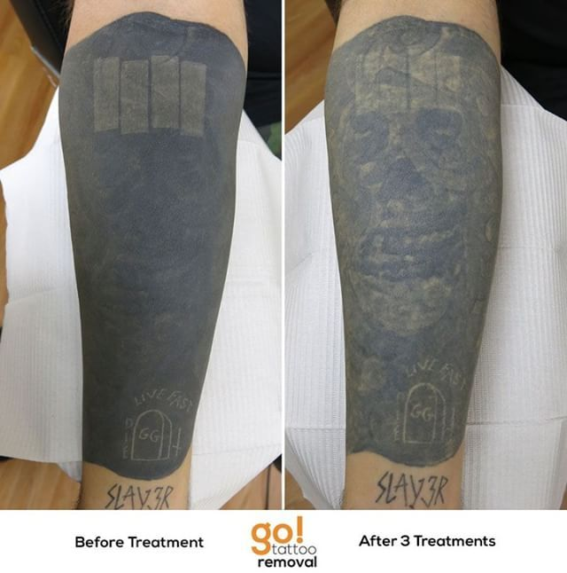 Not happy with the forearm tattoos this client opted for a blackout ...