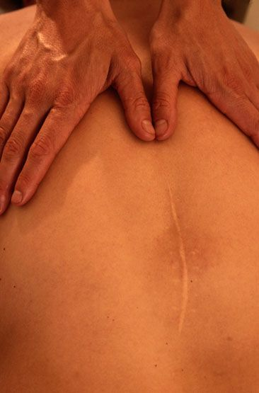 Advanced Muscle Care - always good for your massage therapist to know if you have an injury or any illness like Fibro...
