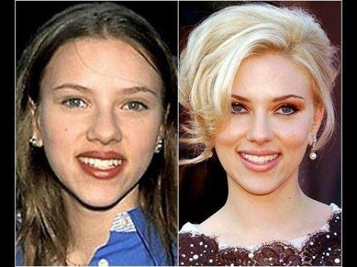 Celebridades operadas (antes y después)