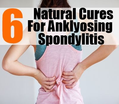 Top 6 Natural Cures For #Anklyosing #Spondylitis