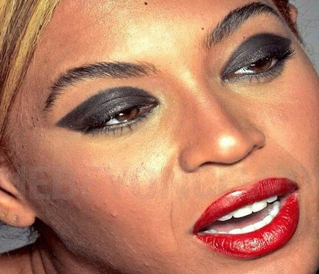 Photos Of Uneven & Pimply Face Of Beyonce For L'Oreal Advert Before The Photoshop Treatment Leaked Online  See More Photos-->> http://www.mjemagazine.com/photos-uneven-pimply-face-beyonce-loreal-advert-photoshop-treatment-leaked-online/