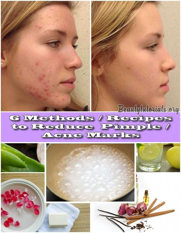 6 Methods Recipes To Reduce Pimple Acne Marks Summerbeautytips How To Reduce Pimples Acne Marks Pimples