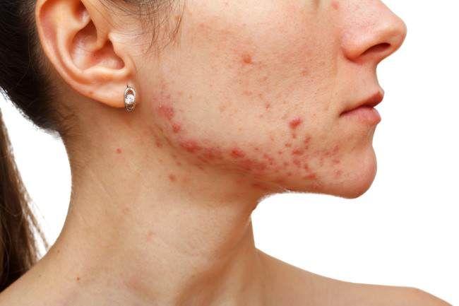 Crema casera para combatir el acne y sus cicatrices. Conocela  http://clubvive100.com/crema-casera-para-combatir-el-acne-y-sus-cicatrices-conocela/ Club Vive100