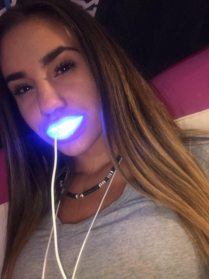 Got that teeth whitening going on
