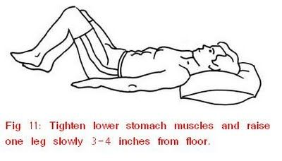 Exercises For Sciatica Exercises For Sciatica 38