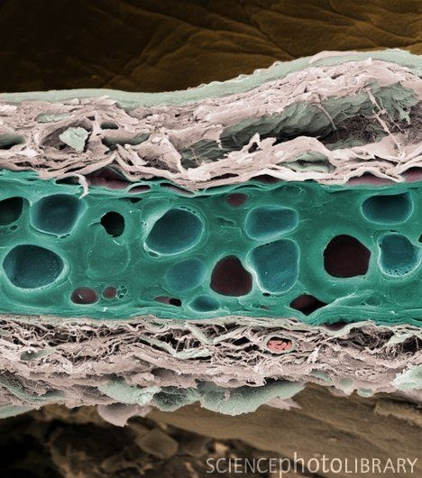 Elastic cartilage from a pinna (inner ear). Elastic cartilage, which maintains the shape of the pinna, contains fibers of the protein elastin