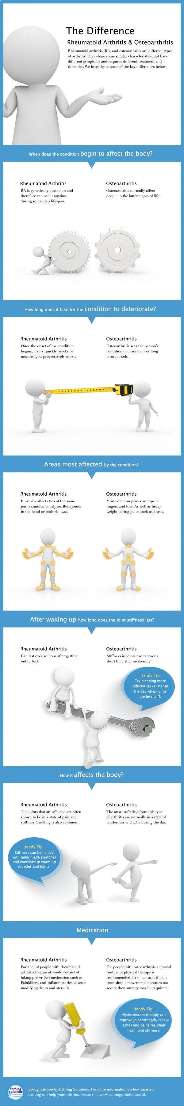 Arthritis Remedies Hands Natural Cures - Arthritis Remedies Hands Natural Cures - The Differences between Osteoarthritis and Rheumatoid Arthritis Arthritis Remedies Hands Natural Cures - Arthritis Remedies Hands Natural Cures