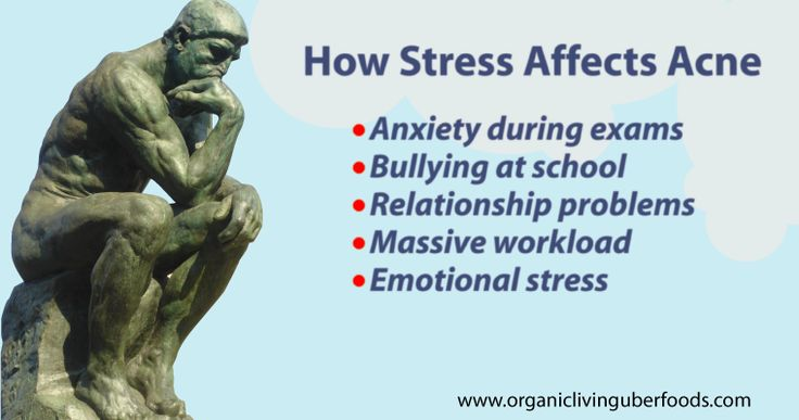 Sometimes stress could trigger acne breakout