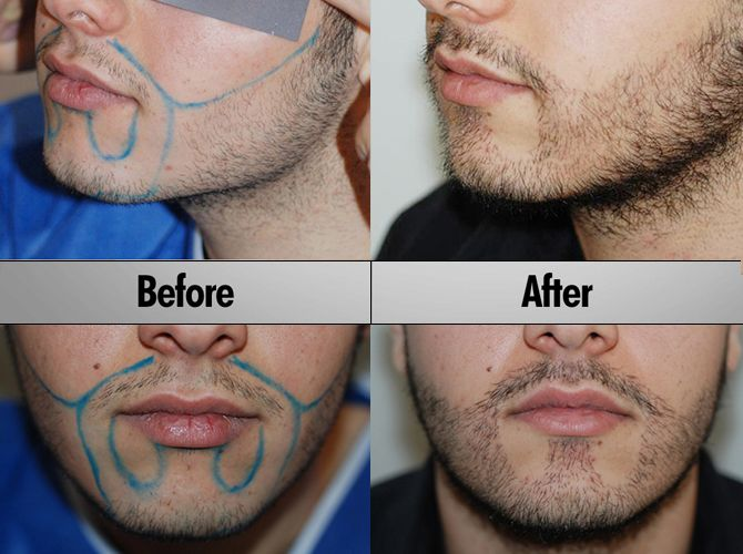Beard Transplants Are Now An Option For Grown Men Who Lack Face Pubes