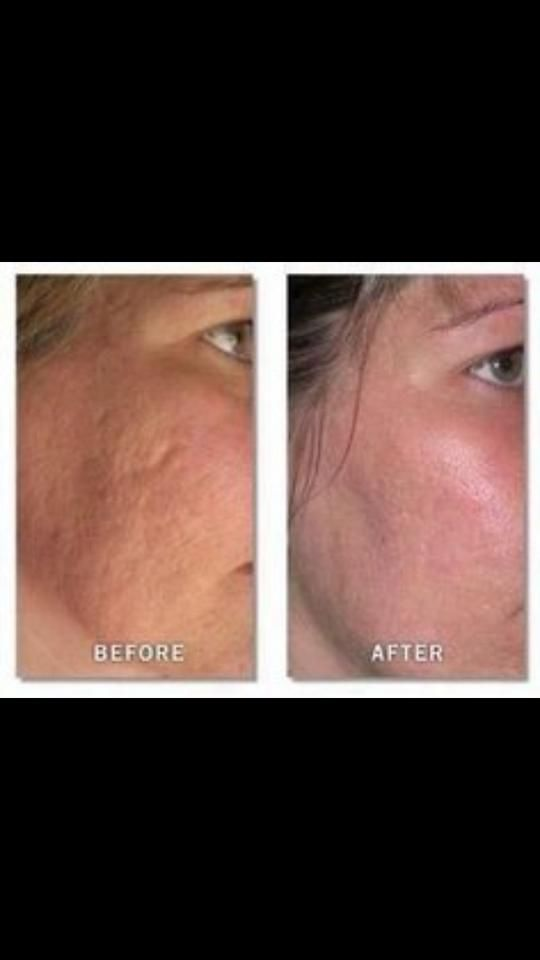 how to get rid of acne scabs in one night