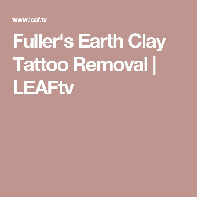 Tattoo Removal Quotes: 407 Best Laserless Tattoo Removal Images On Pinterest