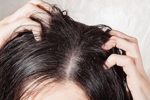 Adoptez-vite cette eau de rinçage au romarin ! Voilà plusieurs millénaires que cette plante, réputée pour améliorer la circulation du cuir chevelu et le fortifier, est utilisée pour soigner la chevelure. Cette lotion est très efficace pour lutter contre les pellicules et les démangeaisons.