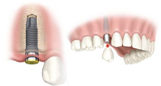 ¿Qué es un implante dental? Si alguna vez te has hecho esta pregunta, en esta página te la contestamos. Cómo son, cómo se colocan, etc. Huimos de los implantes dentales low cost que causan problemas en la salud del paciente.