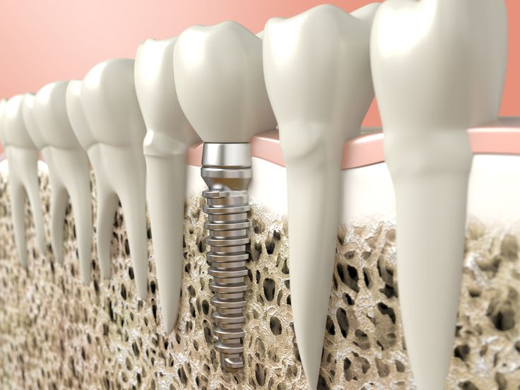 Illustration of a single tooth dental implant replacement. The dental implant is placed in the bone and attached to a crown via an abutment.