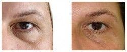 Karboksyterapia - cienie i sińce pod oczami przed i po zabiegu