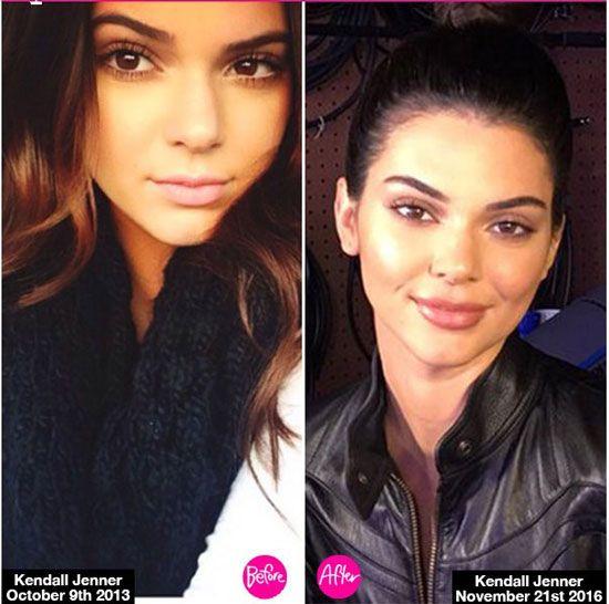 Foreign Girls Wallpaper Kendall Jenner Lip Injections Http Plasticsurgerymagz