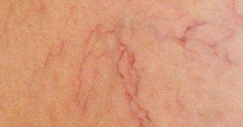 Trápia vás rozšírené žilky? My všetci máme doma liek na rozšírené žilky, len málokto o ňom vie!