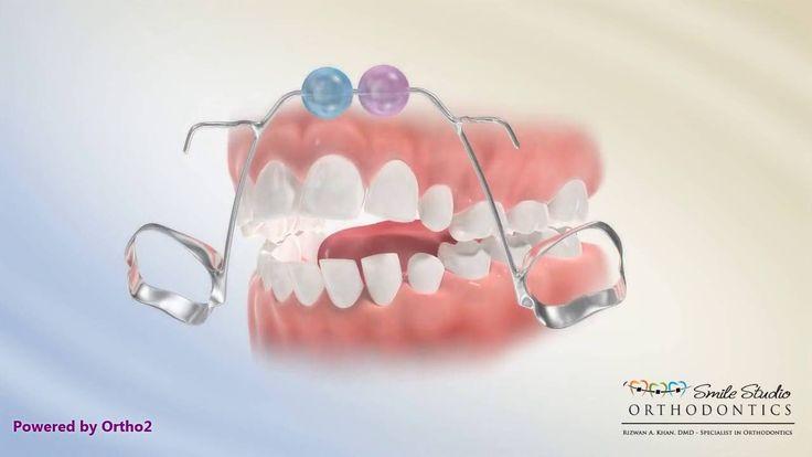 Bluegrass Appliance Orthodontic Appliance Orthodontics