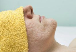 Cystic acne is one of the most severe forms of acne. It goes beyond just pimples and blackheads because it is an actual infection of the sebaceous gland. It can take weeks, even months to heal, and usually leads to scarring. Fortunately, there are some home remedies that promote healing and treat cystic acne.