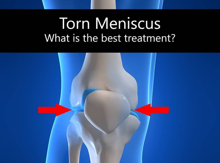 What is the best treatment for a torn meniscus?