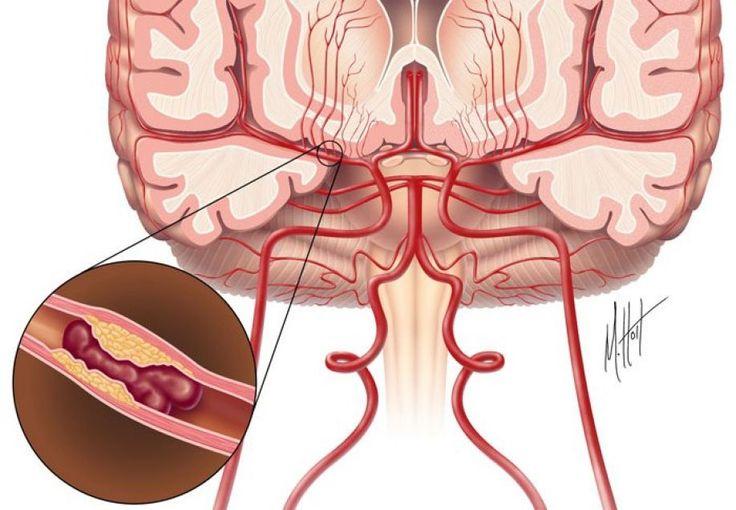 Ισχαιμικό επεισόδιο της μέσης εγκεφαλικής αρτηρίας