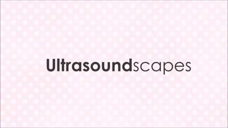 Ultrasoundscapes: Personalized Ultrasound / Sonogram Art (8x10)  Having a baby or know someone that is? I combine your baby's ultrasound into a magical illustration. Your baby becomes the clouds in the sky. Get a personalized ultrasound here: https://www.etsy.com/ca/shop/Ultrasoundscapes