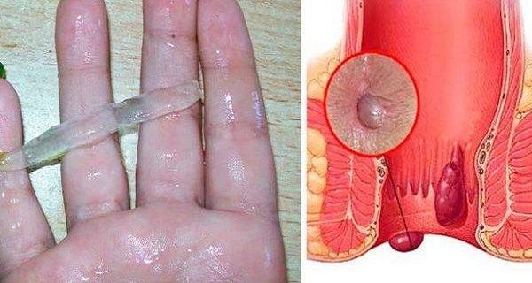 THIS IS THE BEST NATURAL CURE FOR HEMORRHOIDS! EVEN THE DOCTORS ARE AMAZED!
