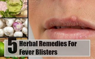 Home Remedies for Fever Blister