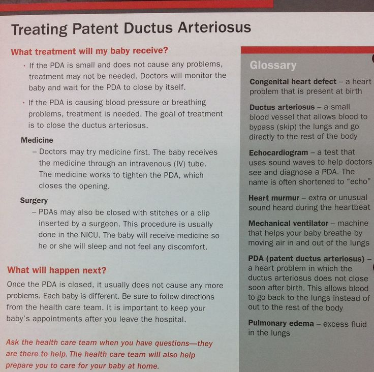 How a Patent Ductus Arteriosus is treated. #PDA #treatment