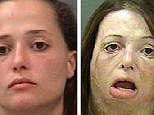 Crystal Meth Skin Pictures to Pin on Pinterest - PinsDaddy