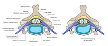 Spinal disc herniation - Wikipedia, the free encyclopedia
