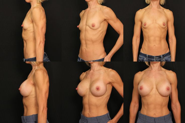 Breast Augmentation with bilateral nipple revision by Dr. Scott Ennis at Destin Plastic Surgery