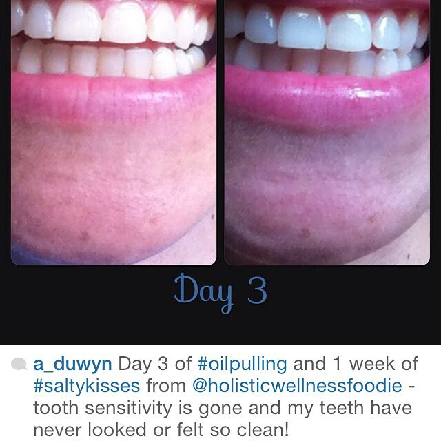 Wow! Love this amazing testimonial! 1 week and already cleaner, whiter & brighter teeth using salty kisses toothpaste ;)