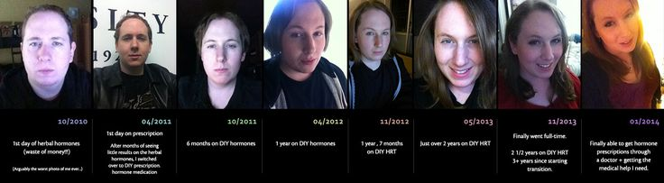 29yo MTF | 3+ Years On HRT - Before, During & After