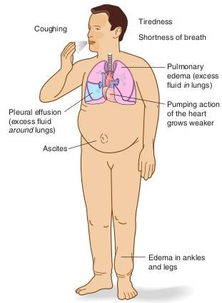 Congestive Heart Failure | FIGURE. Congestive heart failure indicating signs and symptoms.