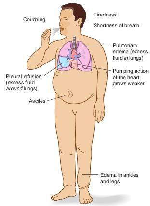 Congestive Heart Failure   FIGURE. Congestive heart failure indicating signs and symptoms.