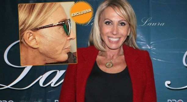 Laura Bozzo se da 'manita de gato', ¡ooootra vez!
