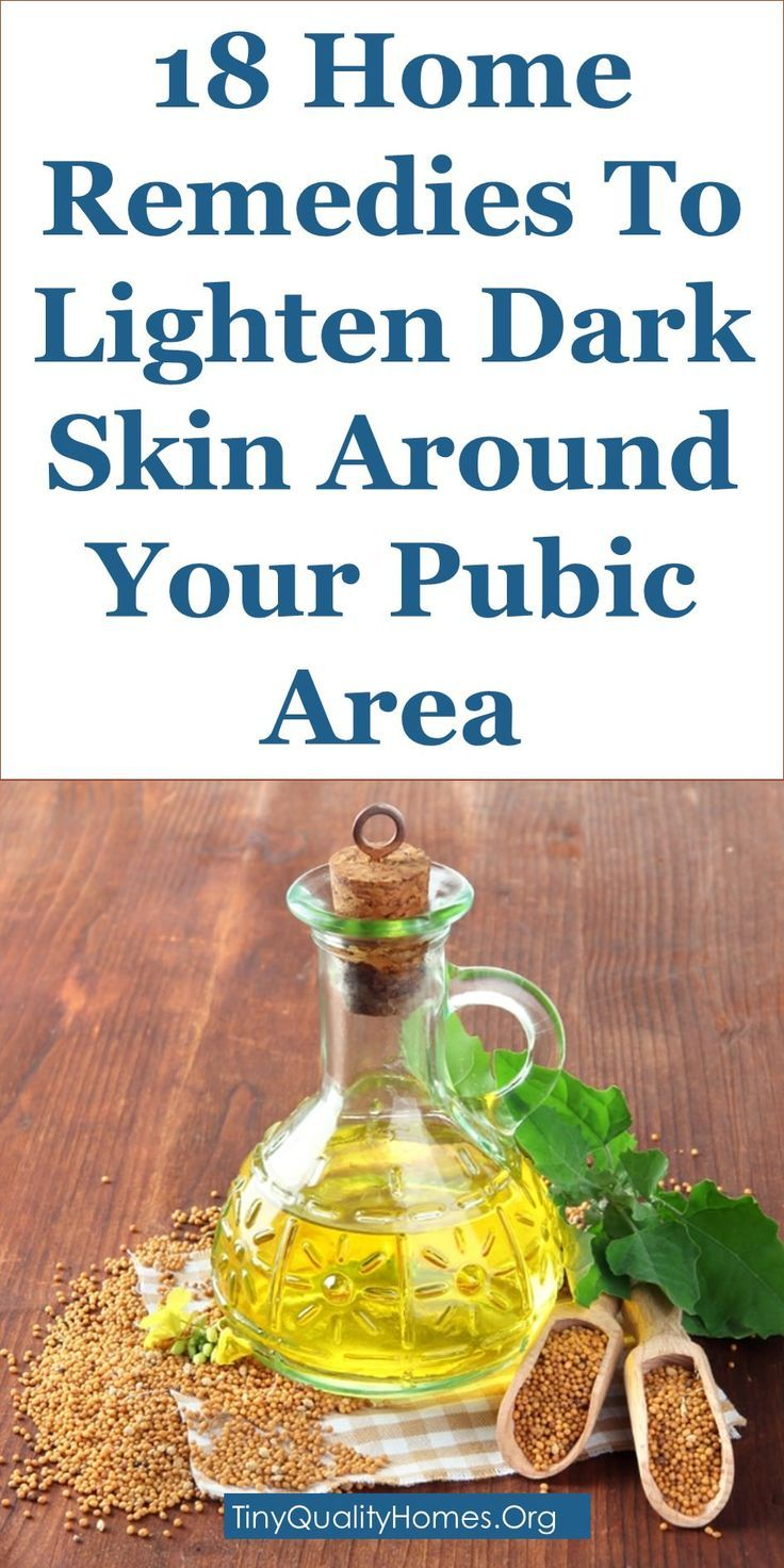 18 Home Remedies To Lighten Dark Skin Around Your Pubic Area: This Guide Shares Insights On The Following;  How To Lighten Private Body Parts (Safely), How To Whiten Groin Area Fast, How To Lighten Your Private Area, How Can I Lighten The Skin Between My Legs, Skin Lightening Cream For Private Areas, Why Is My Pubic Area Dark After Shaving, Groin Whitening Baking Soda, Dark Groin Area Pictures, Etc.
