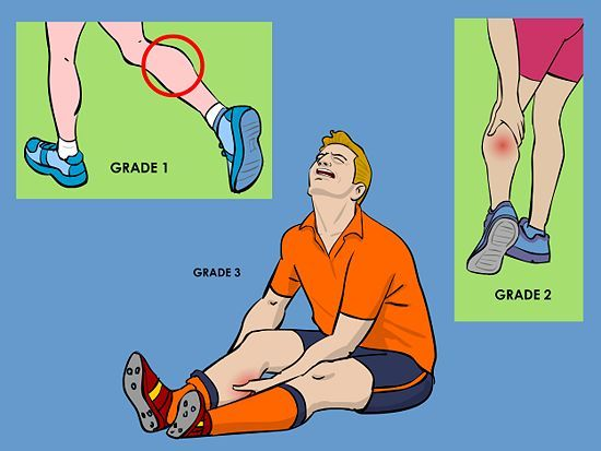 How to Treat a Torn Calf Muscle (with Pictures) - wikiHow