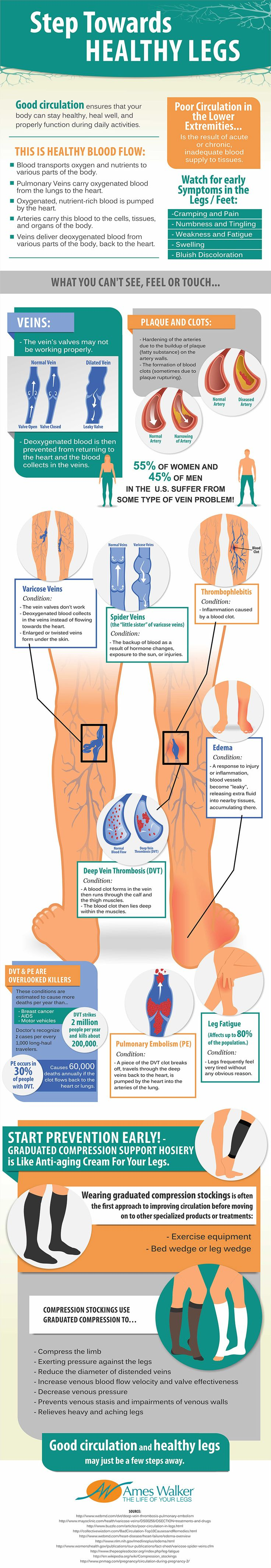 55% of women and 45% of men in the U.S. suffer from some type of vein problem!