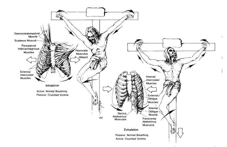 Crucifixion: medical facts. Every believer should read this, its the least we should know about what Jesus had suffered for us, though we can never comprehend the excruxiating pain He went through and can never love and appreciate Him enough.