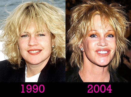 Melanie Griffith Plastic Surgery Disaster