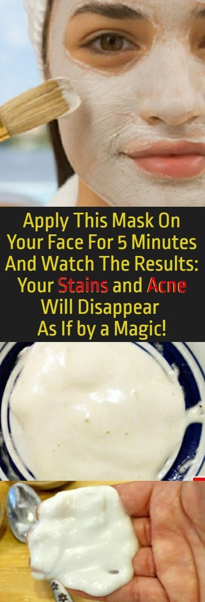 This is definitely the best homemade face mask I have used and made. It is completely safe for use and for its preparation you will need cheap ingredients. Check out here >