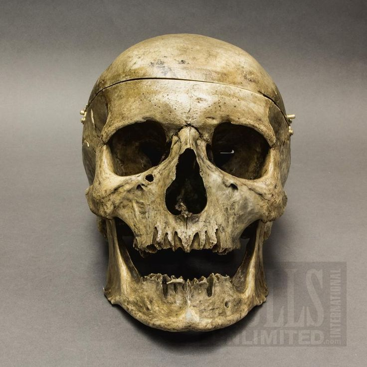 Images of Real Human Skulls For Sale - #rock-cafe