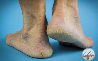 What causes cracked heels? How to prevent & take care of cracked feet? Read on to know about this common skin problem.